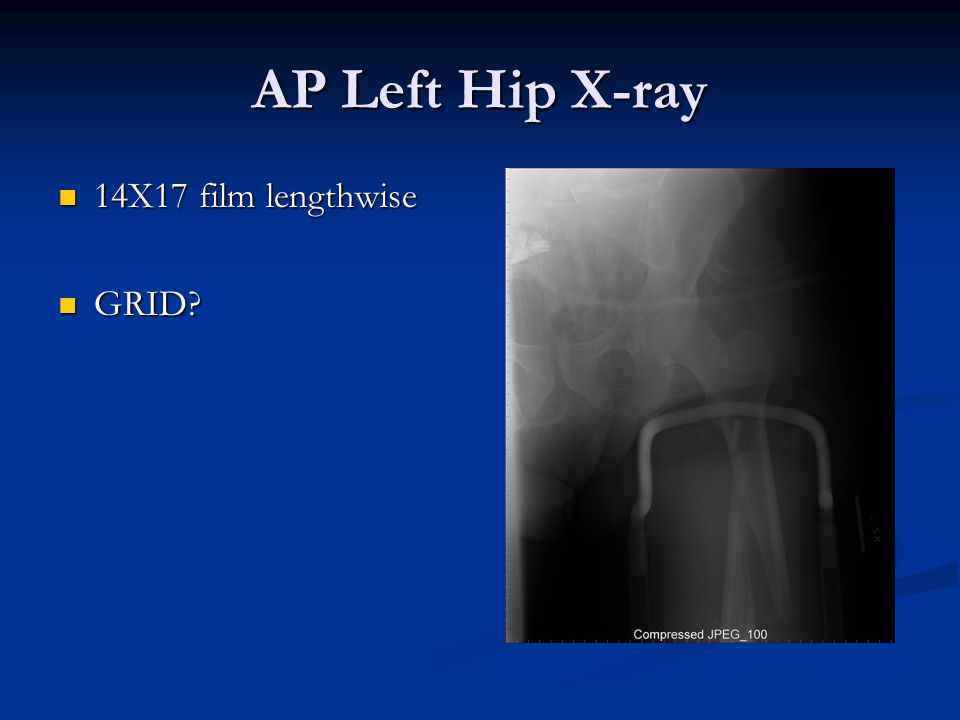 AP Left Hip X-ray 14X17 film lengthwise 14X17 film lengthwise GRID GRID
