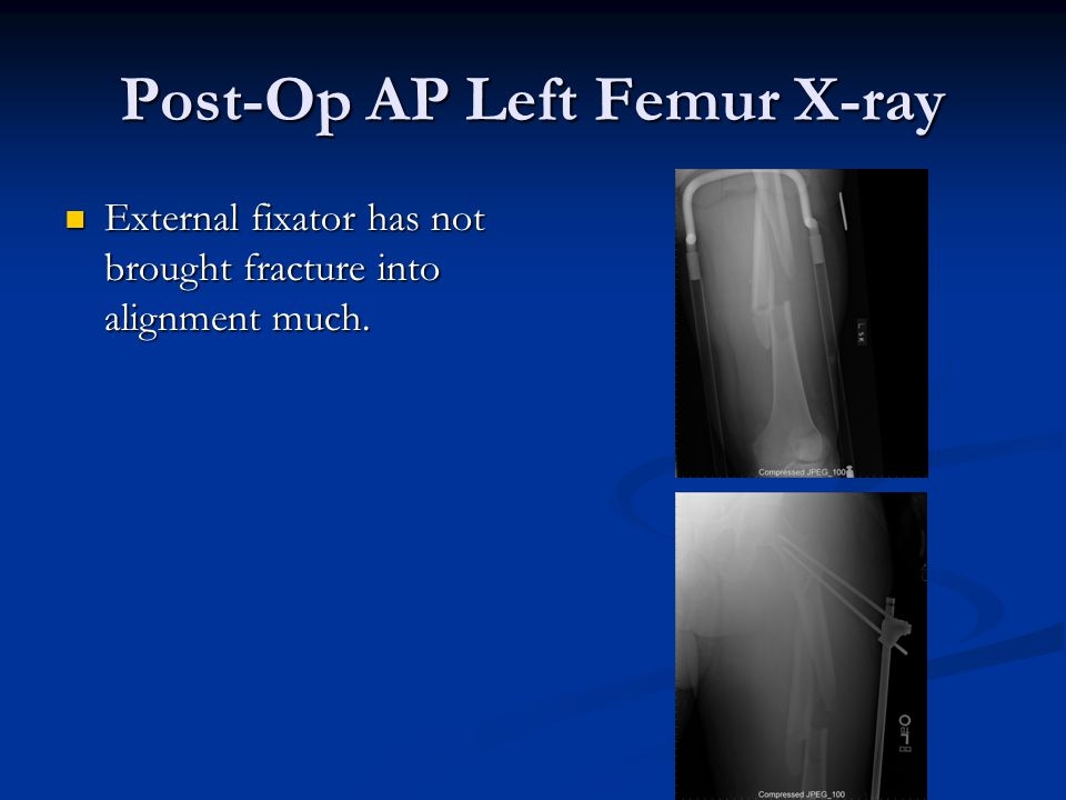 Post-Op AP Left Femur X-ray External fixator has not brought fracture into alignment much. External fixator has not brought fracture into alignment mu