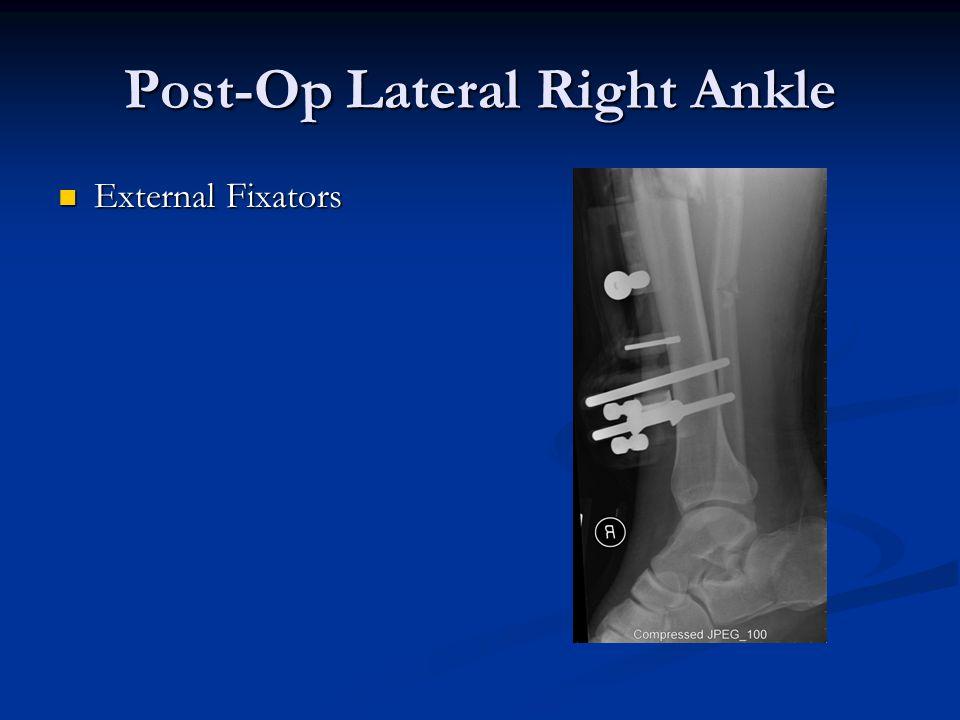 Post-Op Lateral Right Ankle External Fixators External Fixators