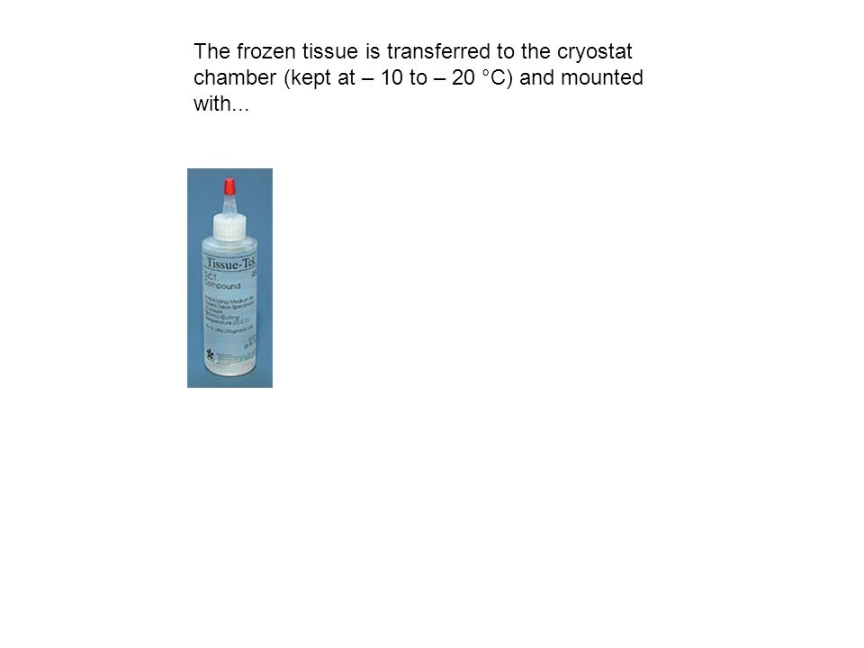 The frozen tissue is transferred to the cryostat chamber (kept at – 10 to – 20 °C) and mounted with...