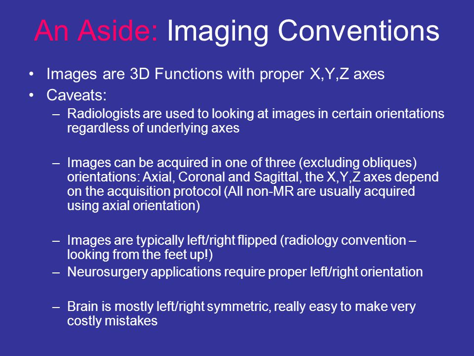 An Aside: Imaging Conventions Images are 3D Functions with proper X,Y,Z axes Caveats: –Radiologists are used to looking at images in certain orientati