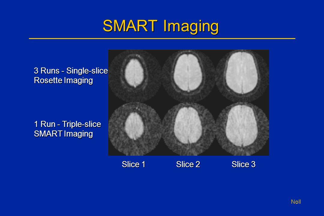 Noll SMART Imaging 3 Runs - Single-slice Rosette Imaging 1 Run - Triple-slice SMART Imaging Slice 1 Slice 2 Slice 3