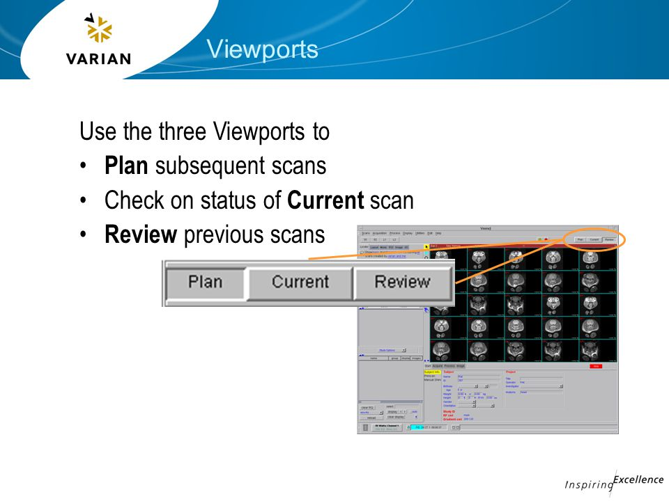 Viewports Use the three Viewports to Plan subsequent scans Check on status of Current scan Review previous scans