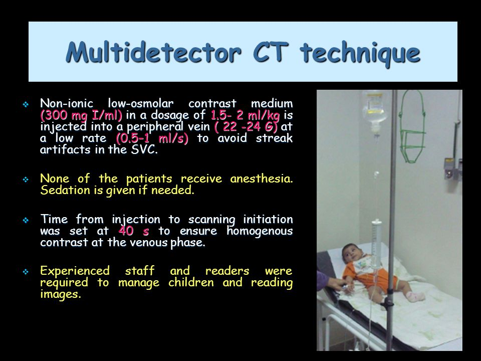 13 Multidetector CT technique  Non-ionic low-osmolar contrast medium (300 mg I/ml) in a dosage of 1.5- 2 ml/kg is injected into a peripheral vein ( 2
