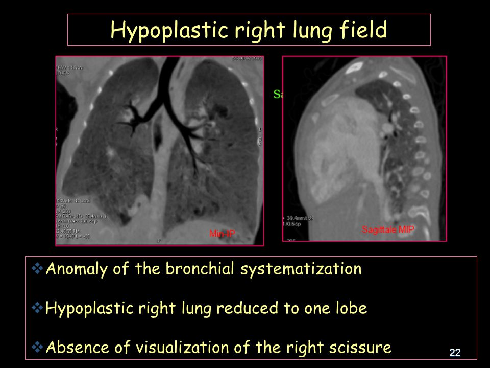22 Hypoplastic right lung field  Anomaly of the bronchial systematization  Hypoplastic right lung reduced to one lobe  Absence of visualization of the right scissure