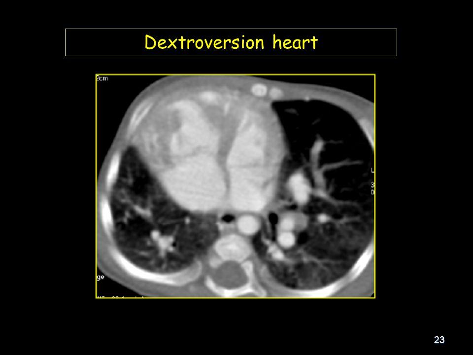 23 Dextroversion heart