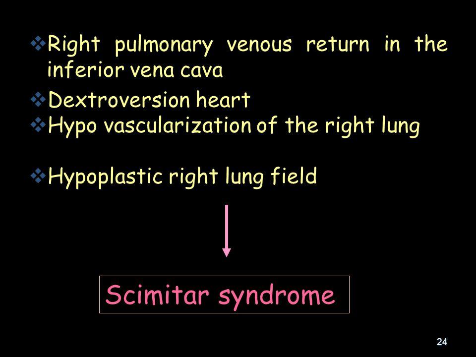 24   Right pulmonary venous return in the inferior vena cava   Dextroversion heart   Hypo vascularization of the right lung   Hypoplastic right lung field Scimitar syndrome