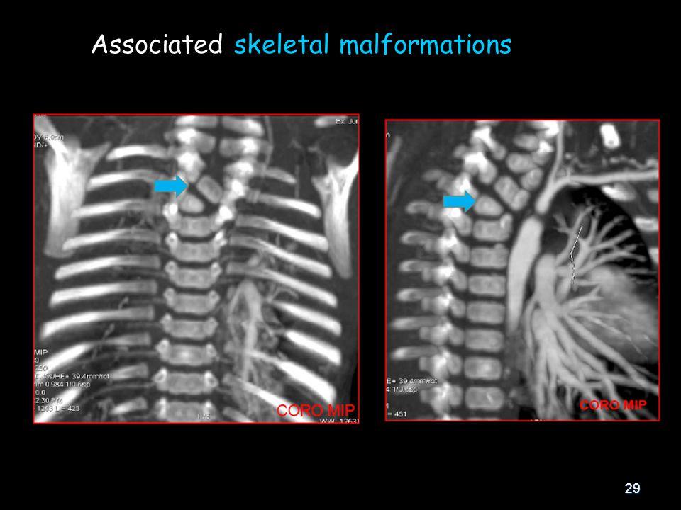 29 Associated skeletal malformations