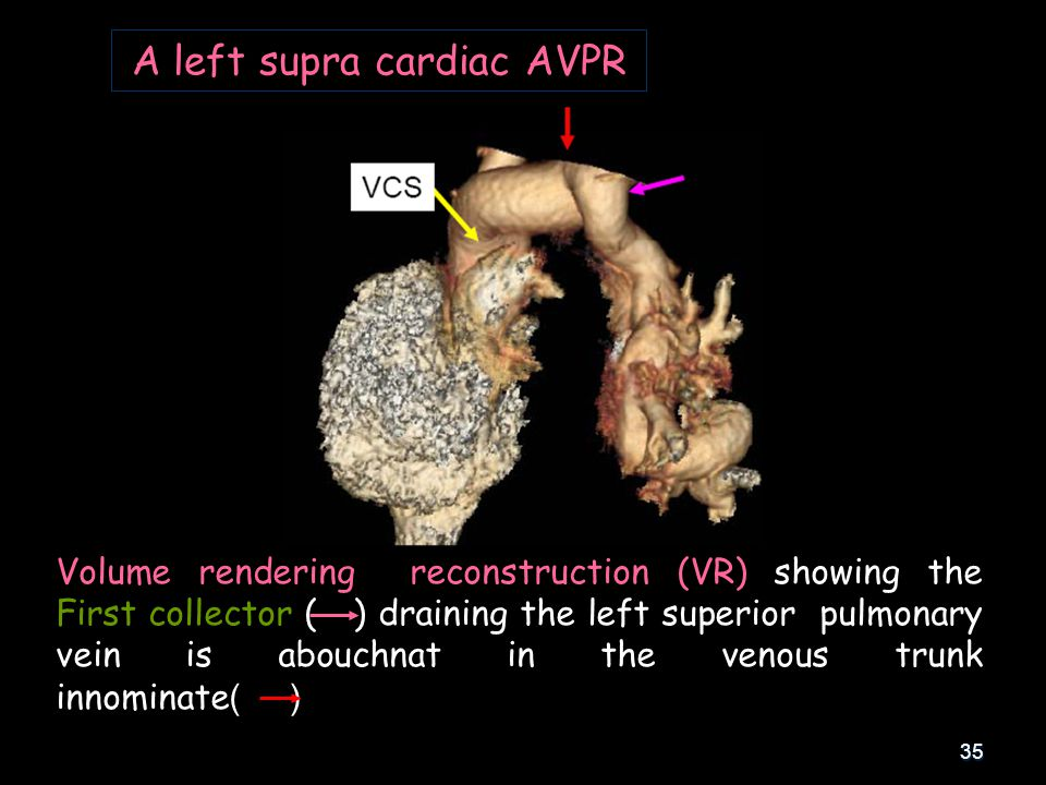 35 A left supra cardiac AVPR Volume rendering reconstruction (VR) showing the First collector ( ) draining the left superior pulmonary vein is abouchn