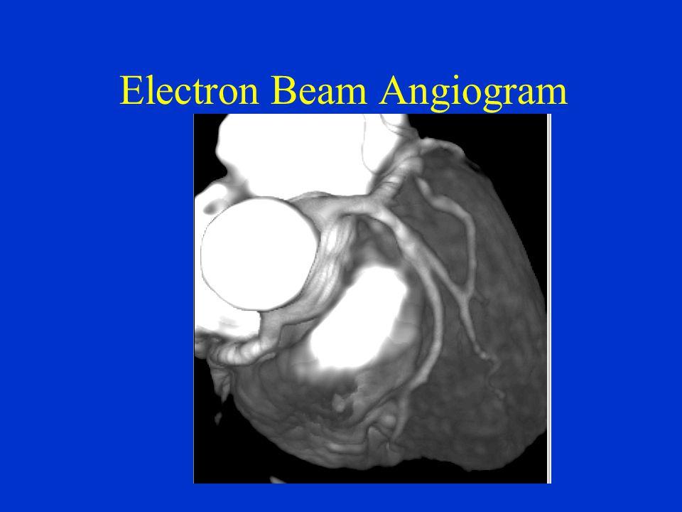 Electron Beam Angiogram
