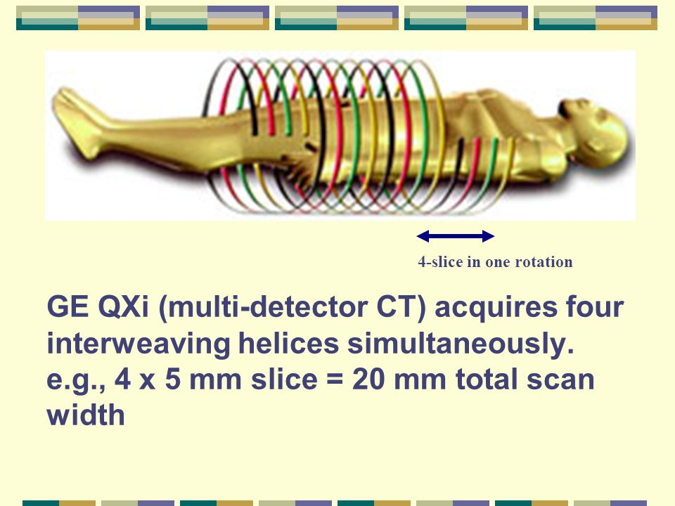 GE QXi (multi-detector CT) acquires four interweaving helices simultaneously.