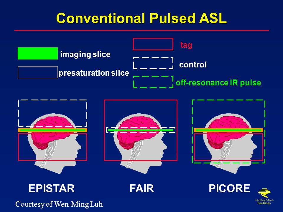 Continuous ASL Imaging Plane Tag Conventional Control Amplitude Modulated Control Inversion Planes B0B0 Blood Magnetization