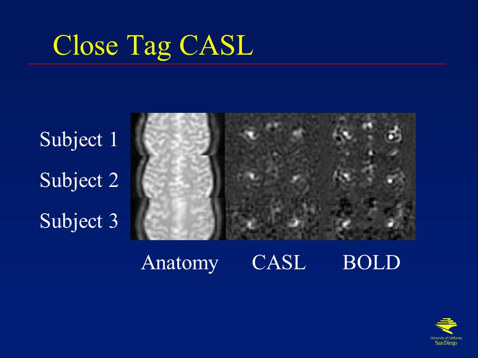 Close Tag CASL CASL with tagging plane 1cm from imaging slice Control is CASL tag on opposite side of slice Tag duration 700ms Delay to image 200ms TR