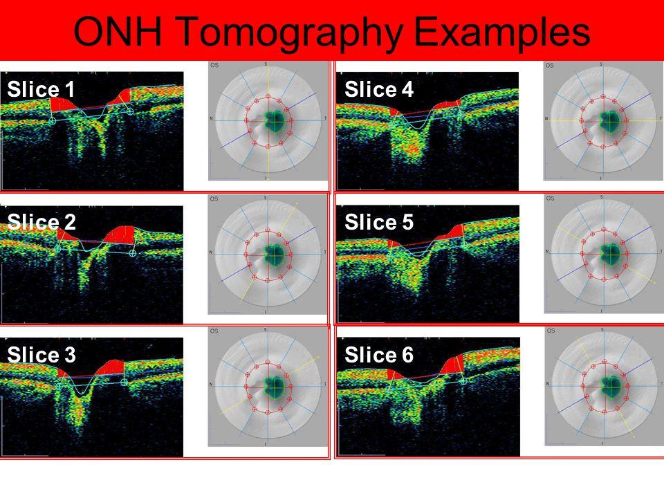 ONH Tomography Examples Slice 1 Slice 2 Slice 3 Slice 4 Slice 5 Slice 6