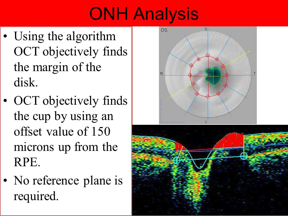 ONH Analysis Using the algorithm OCT objectively finds the margin of the disk.