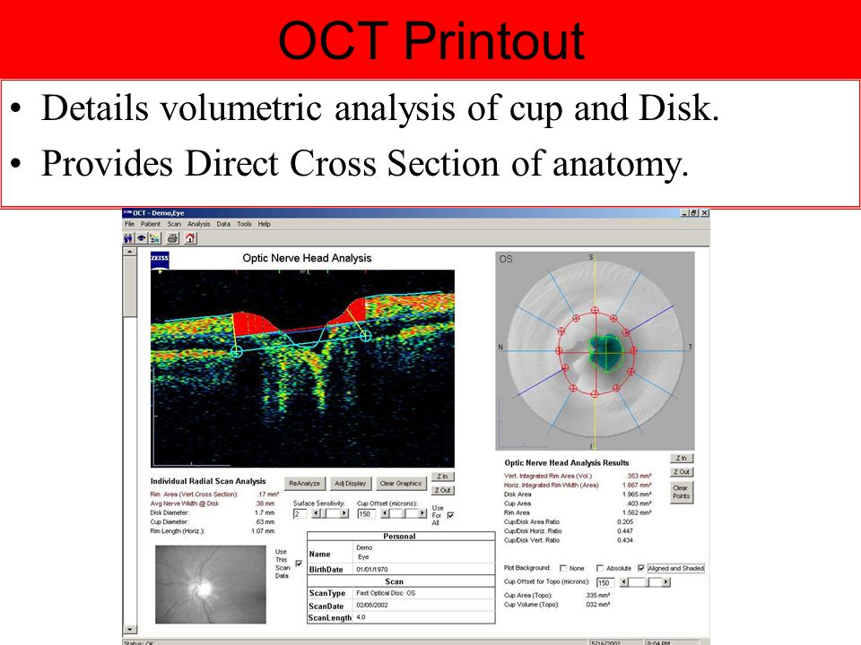 OCT Printout Details volumetric analysis of cup and Disk. Provides Direct Cross Section of anatomy.
