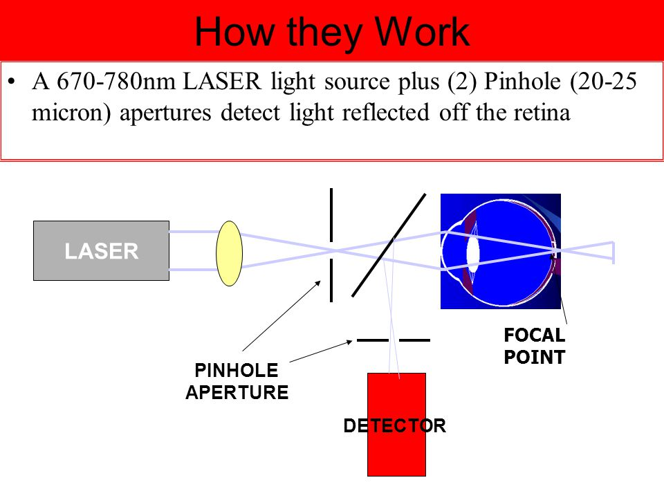 How they Work A 670-780nm LASER light source plus (2) Pinhole (20-25 micron) apertures detect light reflected off the retina LASER DETECTOR PINHOLE APERTURE FOCAL POINT