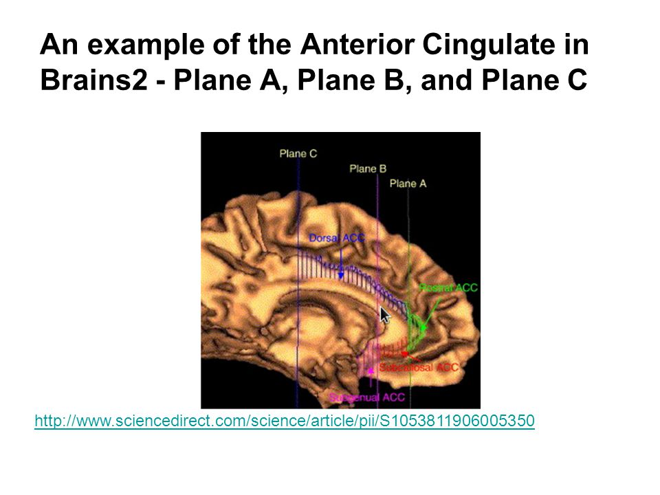 An example of the Anterior Cingulate in Brains2 - Plane A, Plane B, and Plane C http://www.sciencedirect.com/science/article/pii/S1053811906005350