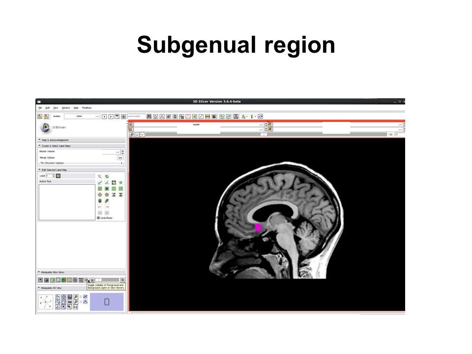 Subgenual region