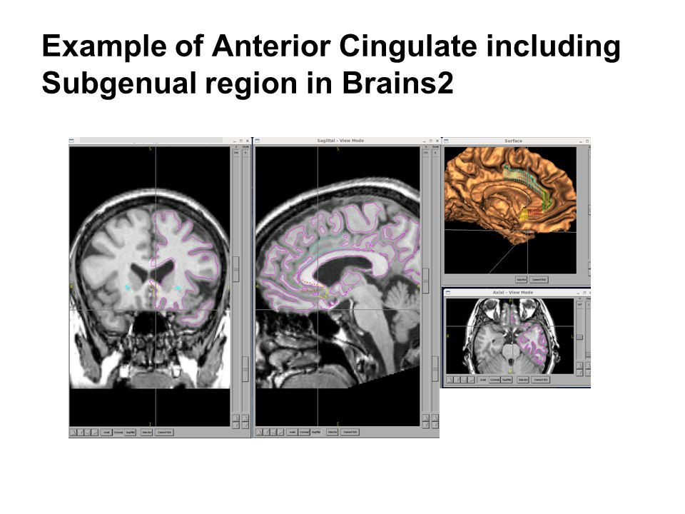 Example of Anterior Cingulate including Subgenual region in Brains2