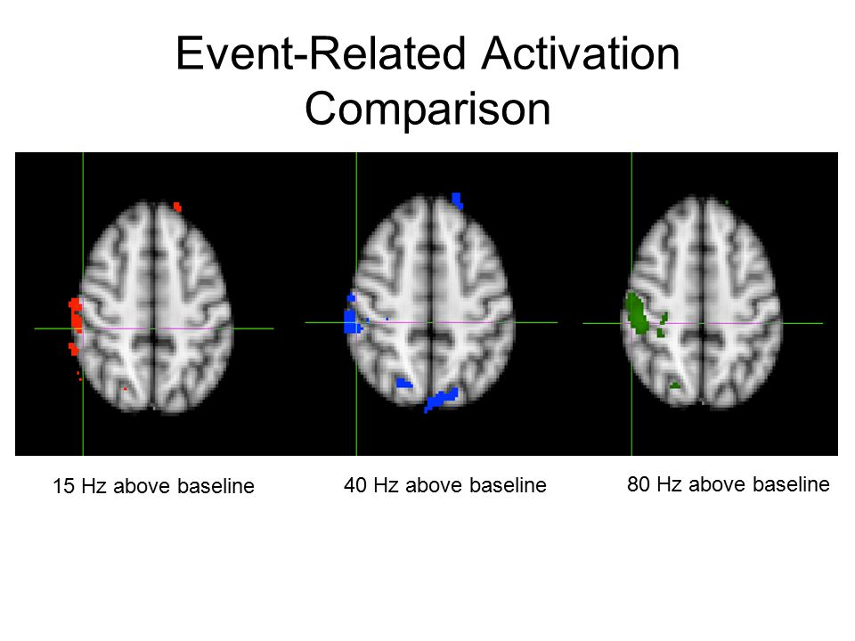 Event-Related Activation Comparison 15 Hz above baseline 40 Hz above baseline 80 Hz above baseline