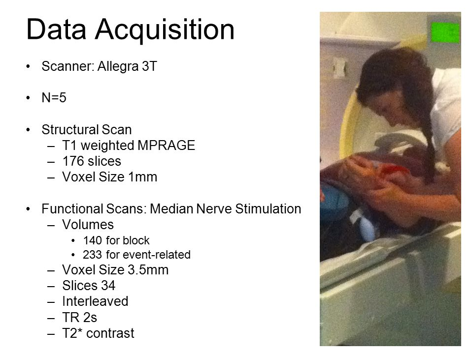 Data Acquisition Scanner: Allegra 3T N=5 Structural Scan –T1 weighted MPRAGE –176 slices –Voxel Size 1mm Functional Scans: Median Nerve Stimulation –Volumes 140 for block 233 for event-related –Voxel Size 3.5mm –Slices 34 –Interleaved –TR 2s –T2* contrast