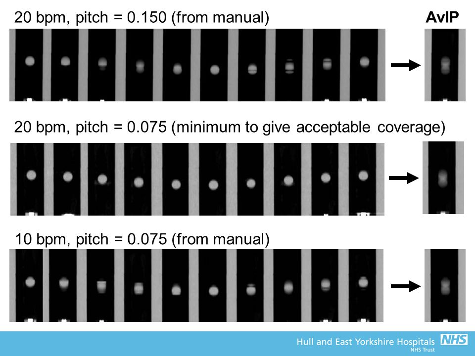 20 bpm, pitch = 0.150 (from manual) 20 bpm, pitch = 0.075 (minimum to give acceptable coverage) 10 bpm, pitch = 0.075 (from manual) AvIP