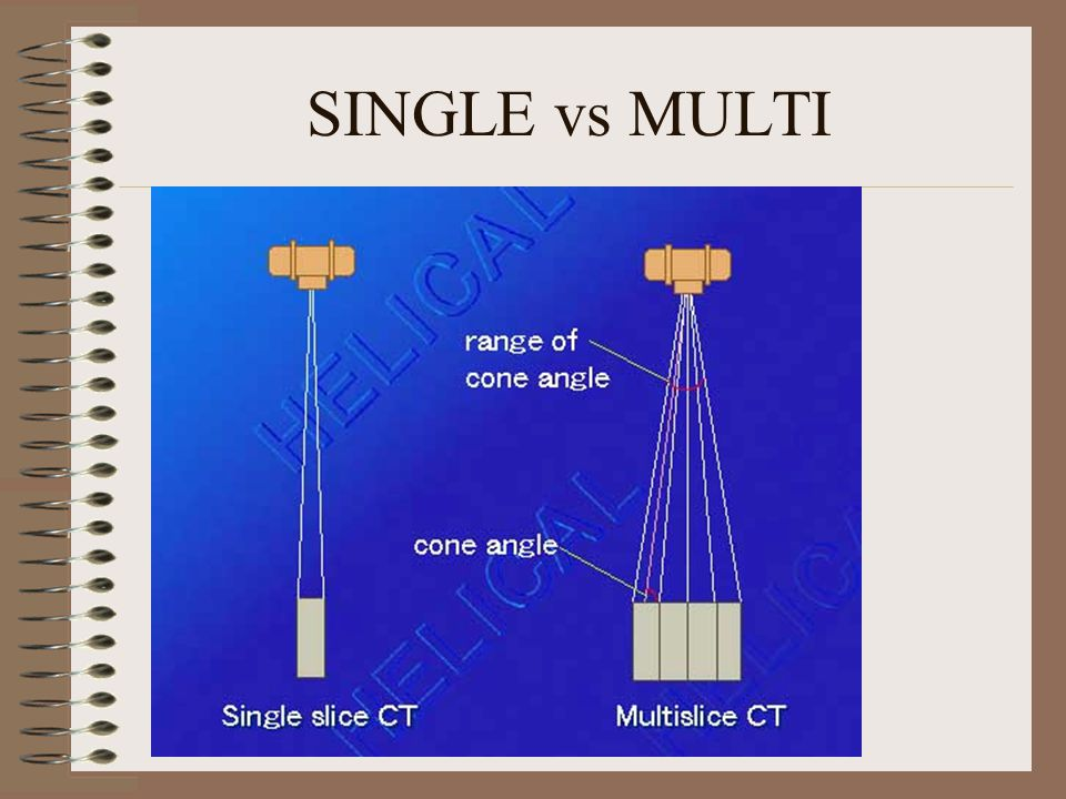 SINGLE vs MULTI