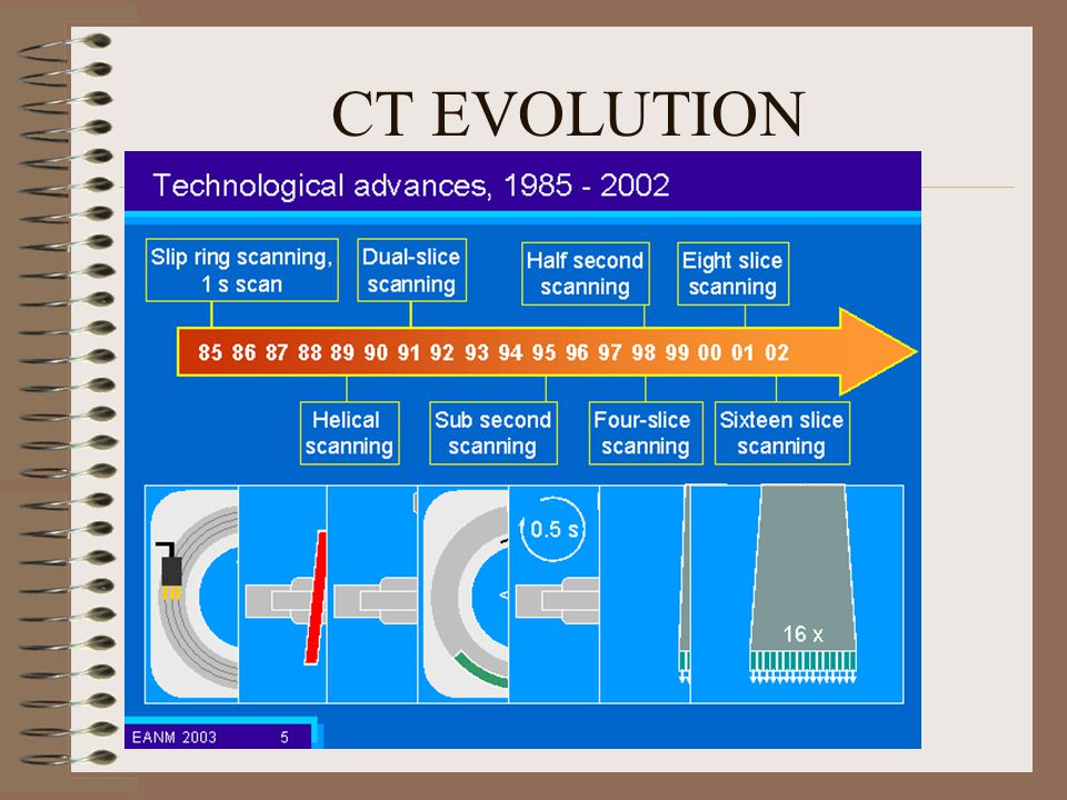 CT EVOLUTION