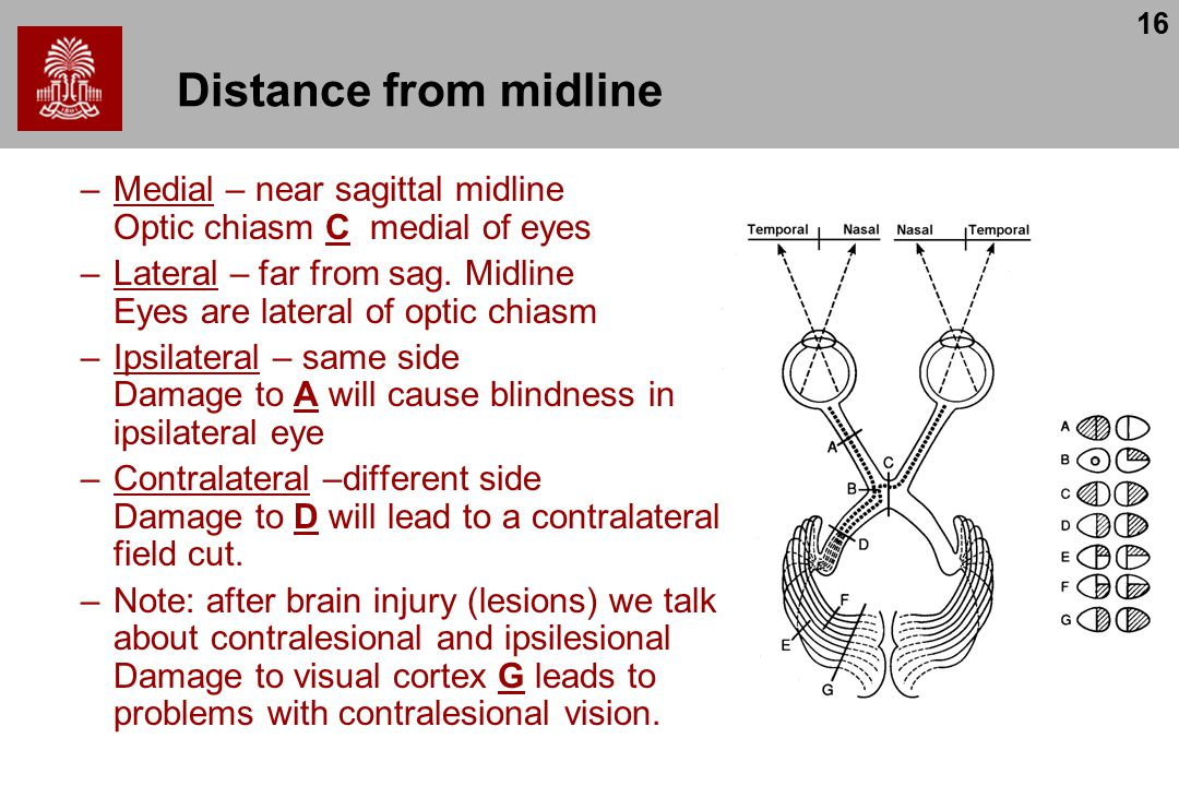 16 Distance from midline –Medial – near sagittal midline Optic chiasm C medial of eyes –Lateral – far from sag.