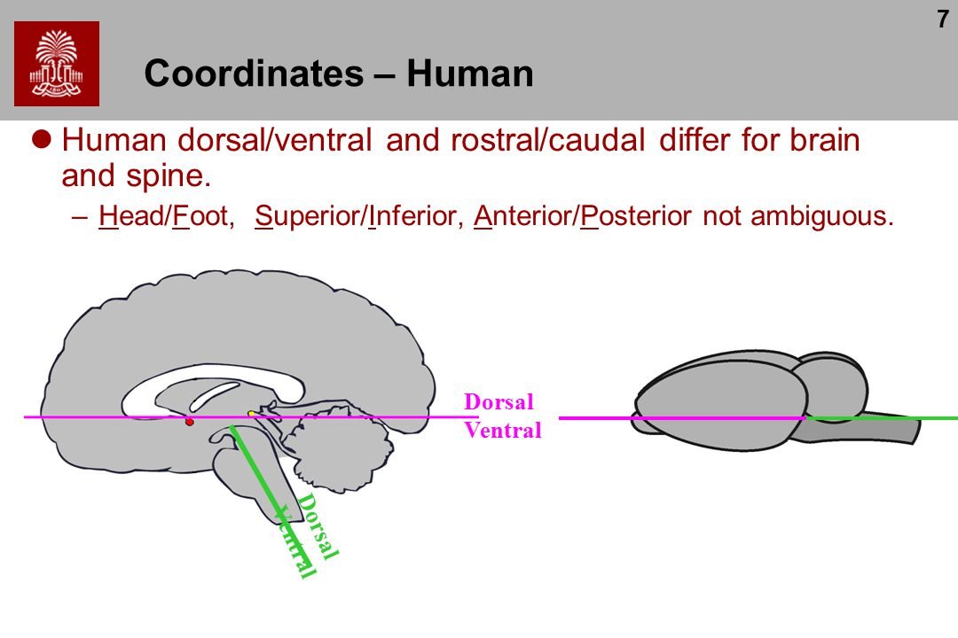 7 Coordinates – Human Human dorsal/ventral and rostral/caudal differ for brain and spine.