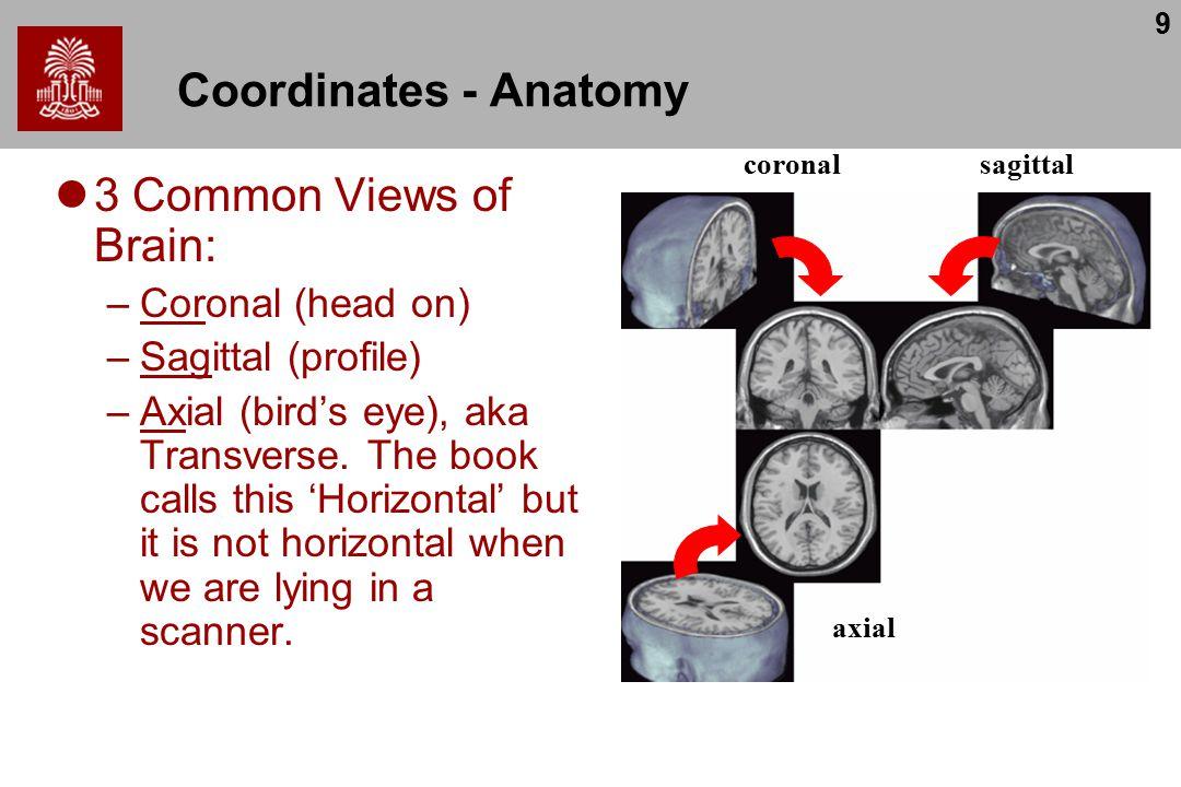 9 Coordinates - Anatomy 3 Common Views of Brain: –Coronal (head on) –Sagittal (profile) –Axial (bird's eye), aka Transverse.