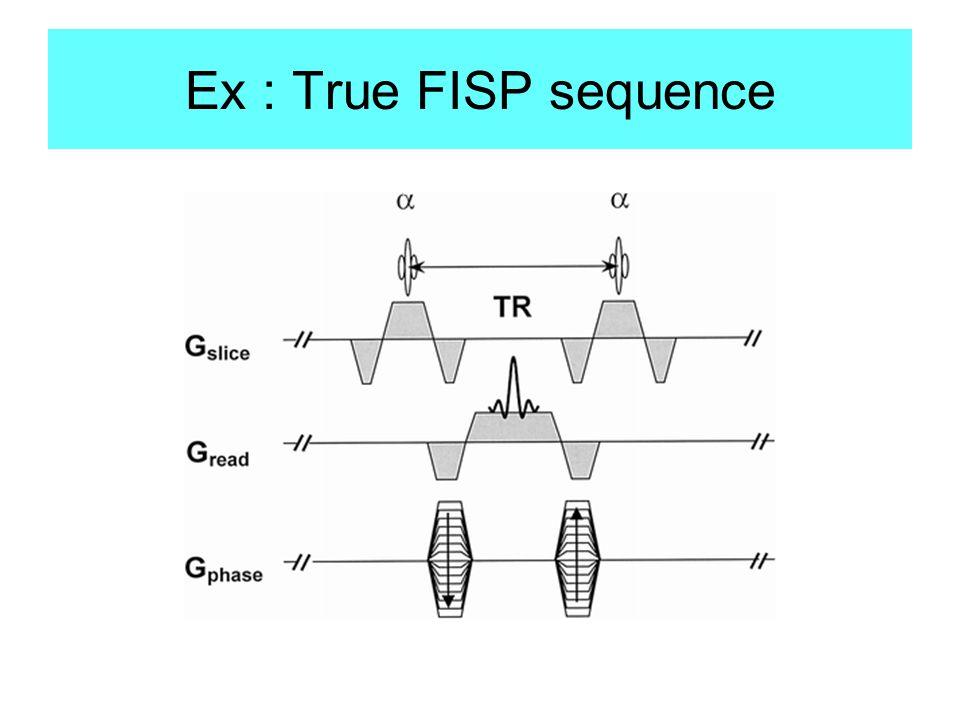 Ex : True FISP sequence