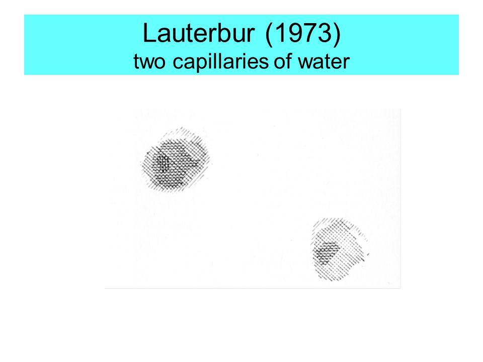 Lauterbur (1973) two capillaries of water