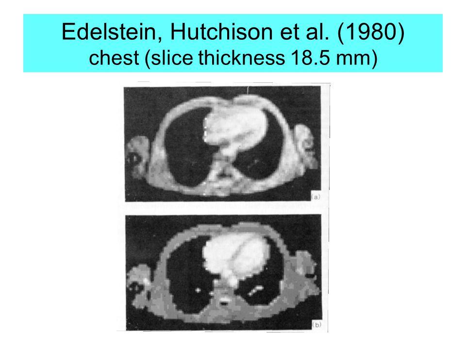 Edelstein, Hutchison et al. (1980) chest (slice thickness 18.5 mm)