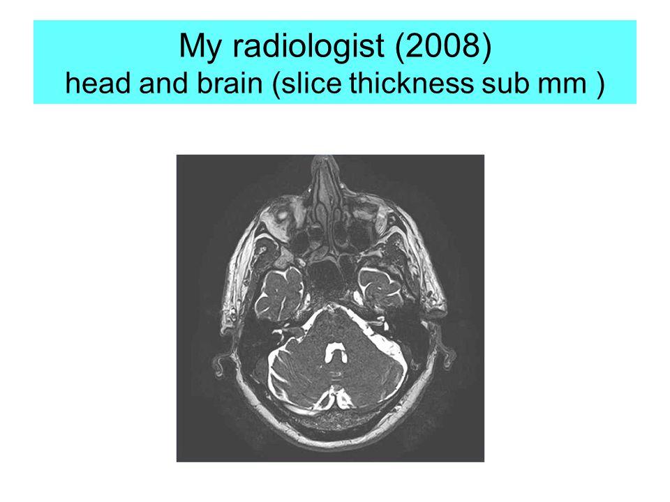 My radiologist (2008) head and brain (slice thickness sub mm )