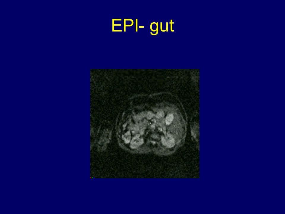 EPI- fetus Fetal Brain Placenta Fetal Lung Fetal Liver