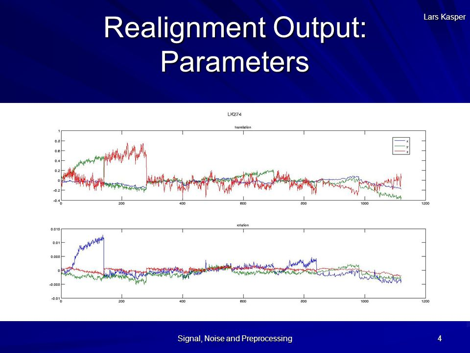 Realignment Output: Parameters Lars Kasper Signal, Noise and Preprocessing 4