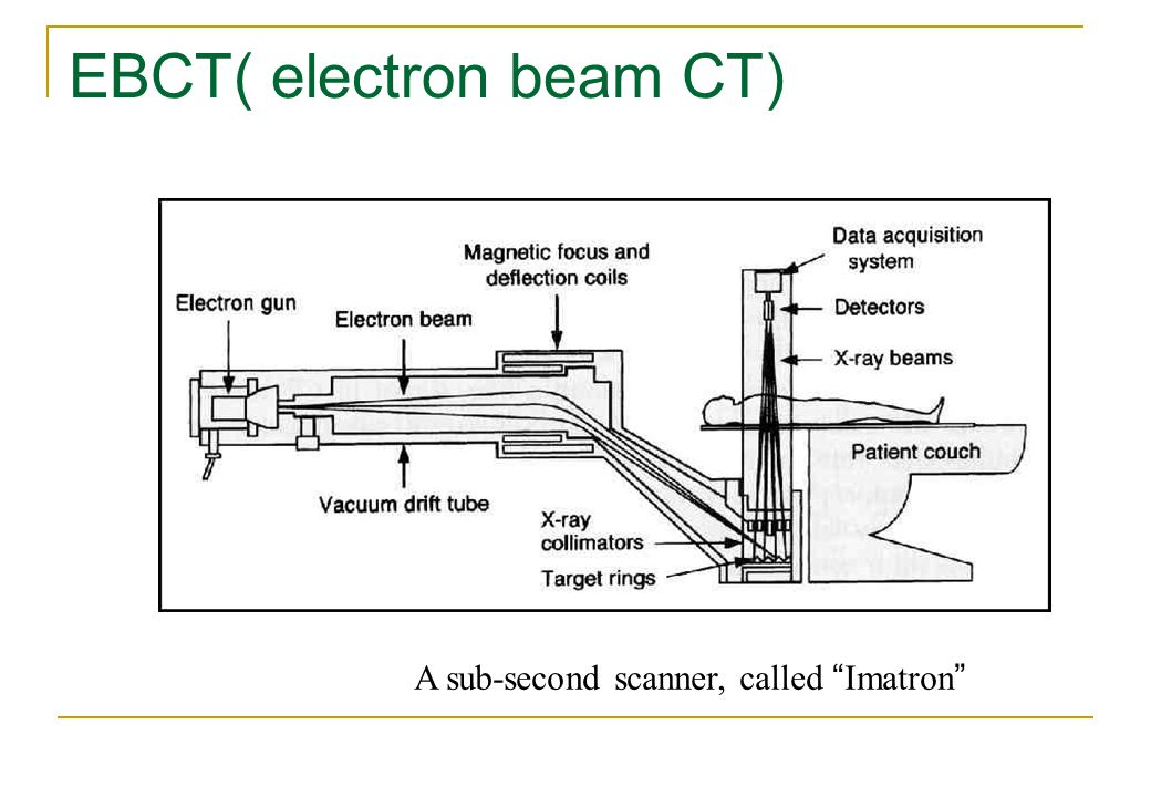 EBCT( electron beam CT) A sub-second scanner, called Imatron