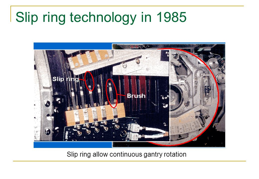 Slip ring technology in 1985 Slip ring allow continuous gantry rotation