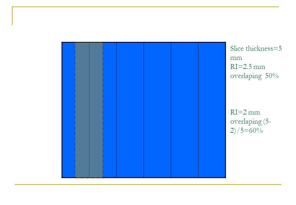 Slice thickness=5 mm RI=2.5 mm overlaping 50% RI=2 mm overlaping (5- 2)/5=60%