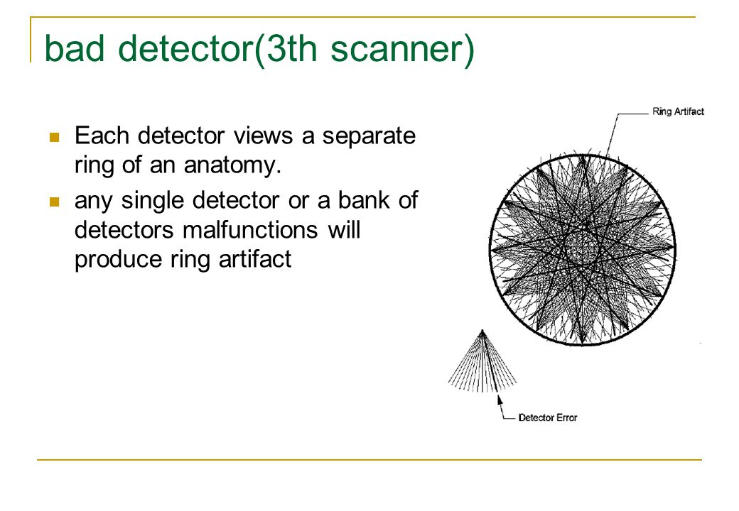 bad detector(3th scanner) Each detector views a separate ring of an anatomy.