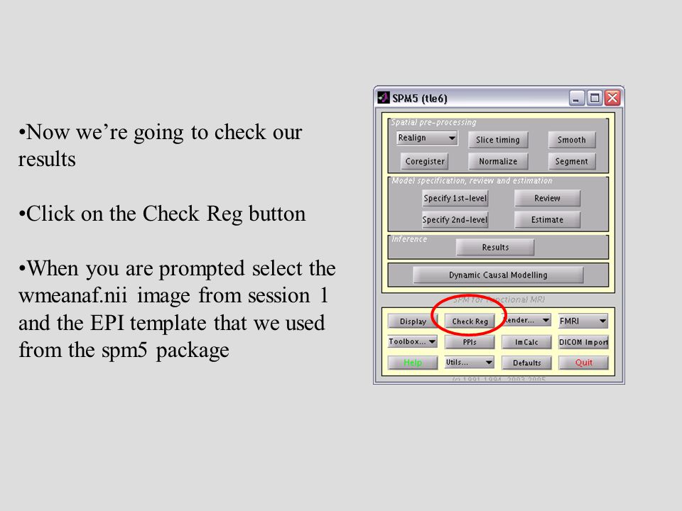 Now we're going to check our results Click on the Check Reg button When you are prompted select the wmeanaf.nii image from session 1 and the EPI template that we used from the spm5 package