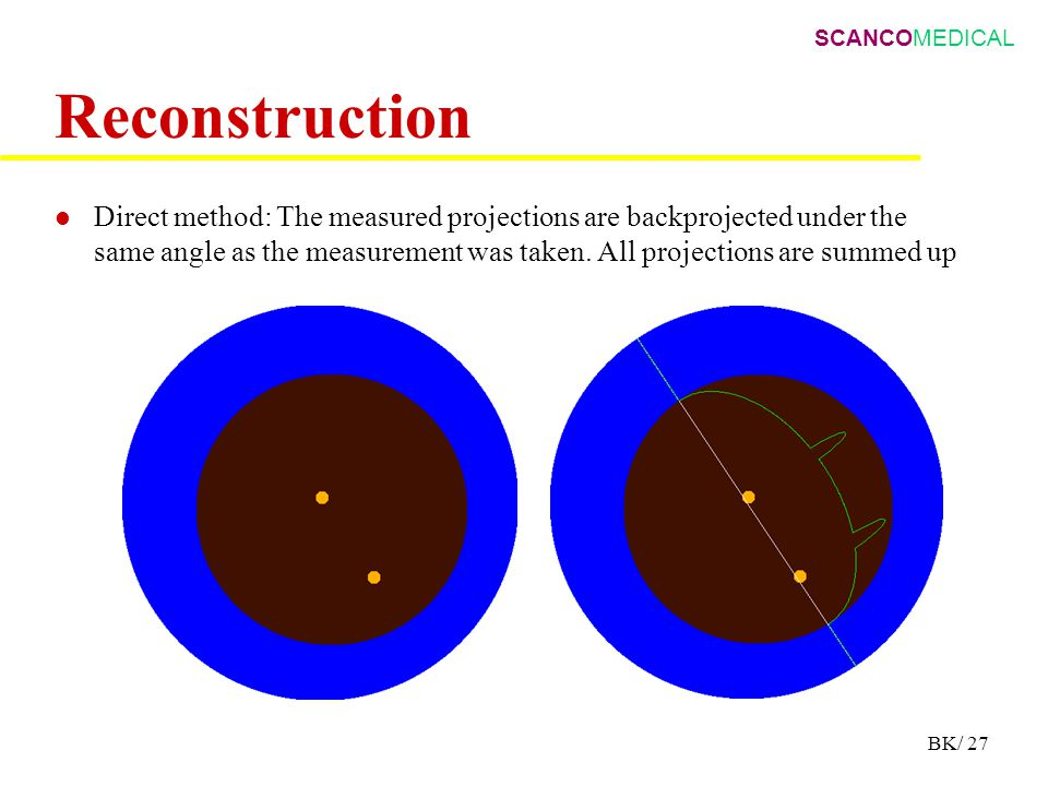 SCANCOMEDICAL BK/ 27 Reconstruction Direct method: The measured projections are backprojected under the same angle as the measurement was taken.