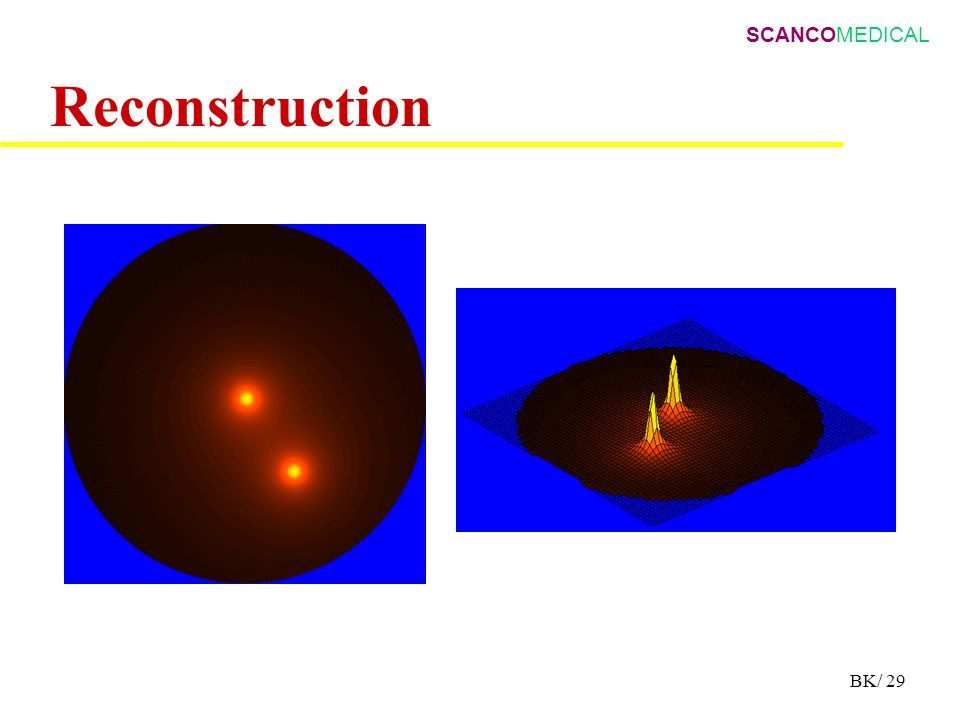 SCANCOMEDICAL BK/ 29 Reconstruction