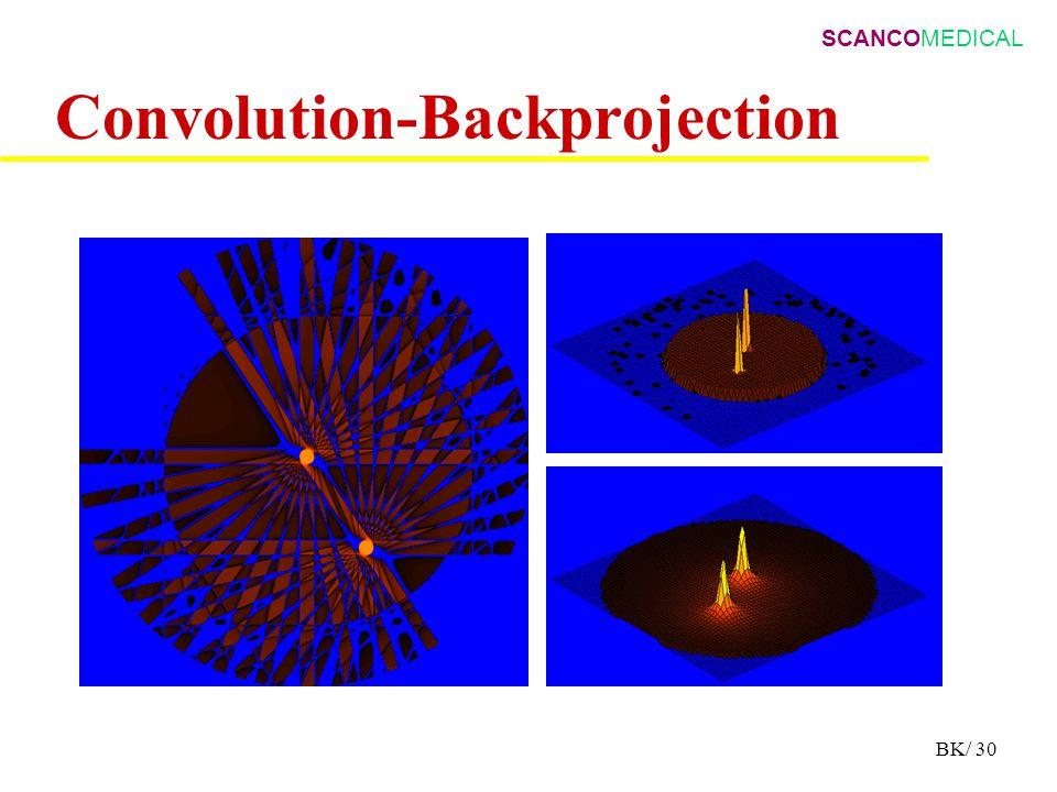 SCANCOMEDICAL BK/ 30 Convolution-Backprojection
