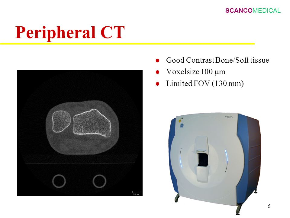 SCANCOMEDICAL BK/ 6 Peripheral CT Good Contrast Bone/Soft tissue Voxelsize 100  m Limited FOV (130 mm) 1 cm