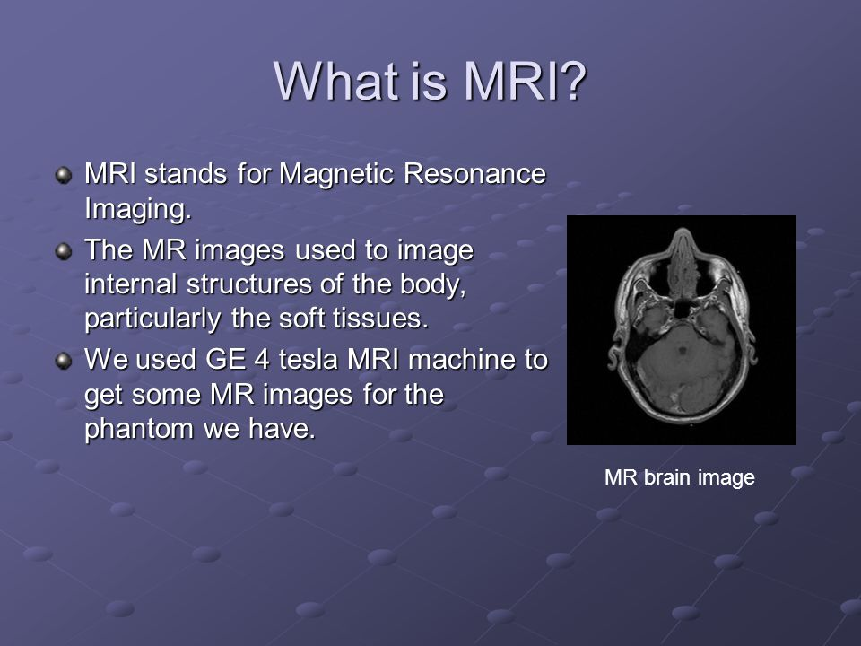 What is MRI? MRI stands for Magnetic Resonance Imaging. The MR images used to image internal structures of the body, particularly the soft tissues. We