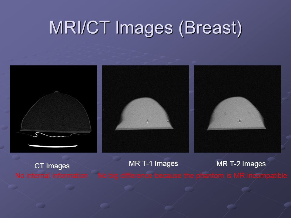 MRI/CT Images (Breast) MR T-2 Images MR T-1 Images CT Images No big difference because the phantom is MR incompatibleNo internal information