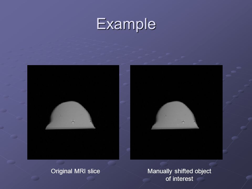 Example Original MRI sliceManually shifted object of interest